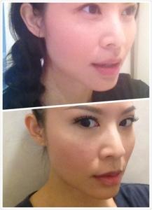 Dr Dennis Kwan Jessica S Blog